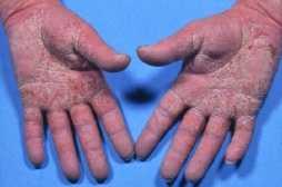 røde håndflader og fodsåler
