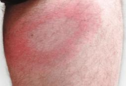 rødt udslæt på kroppen